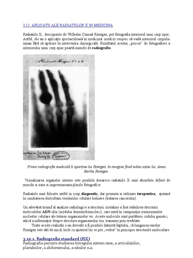 radiații infraroșii în tratamentul articulațiilor)