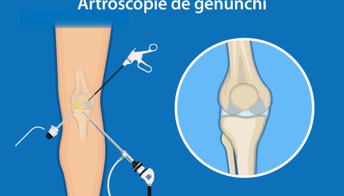 blocajul articulației genunchiului este)