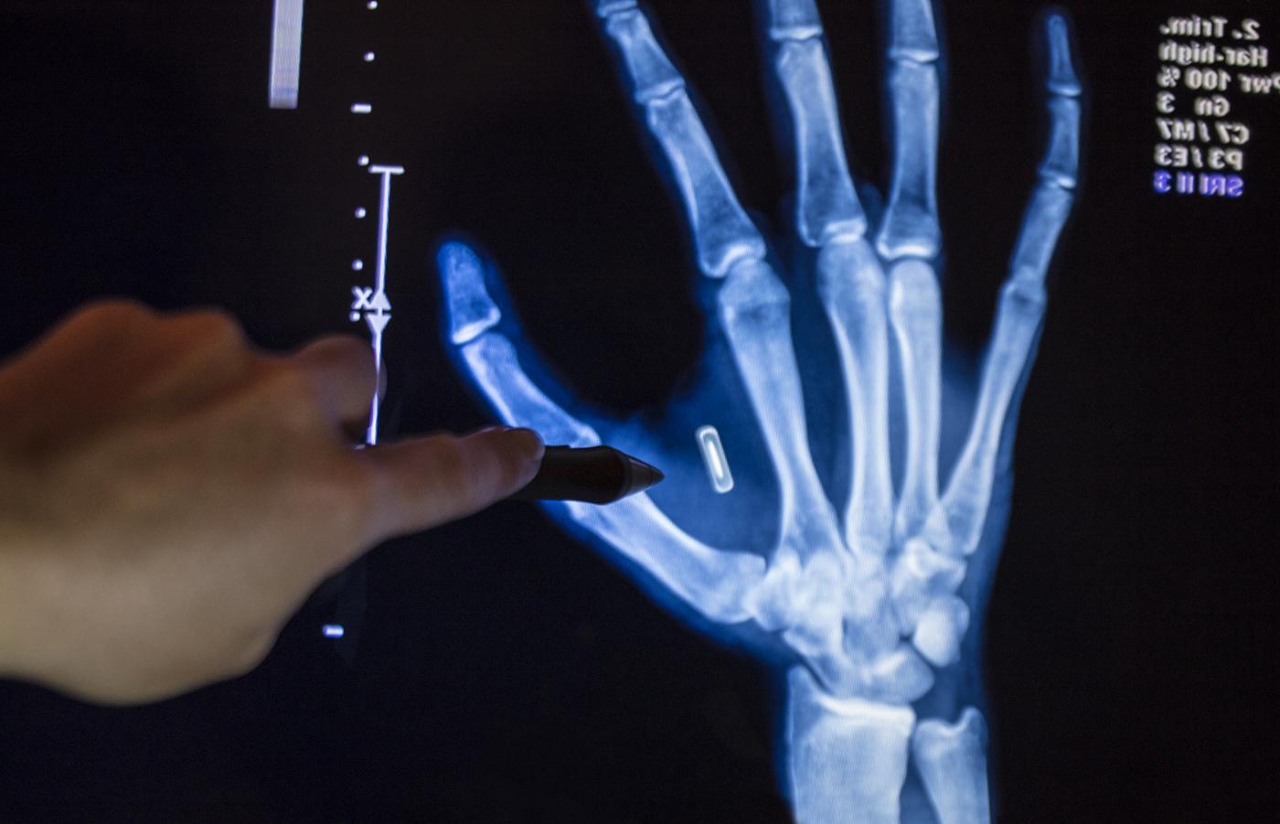 sigilarea pe articulația degetului doare