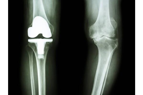 la medici. tratamentul artrozei genunchiului