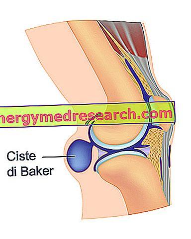 durere plictisitoare la genunchi în repaus)