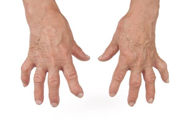 umflarea articulațiilor mâinilor)