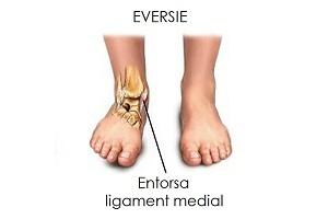 Umflarea articulației gleznei, fără durere și rănire, Dureri ale gleznei şi piciorului