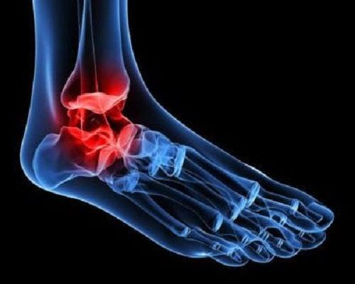 tratament pentru durerea articulațiilor gleznei
