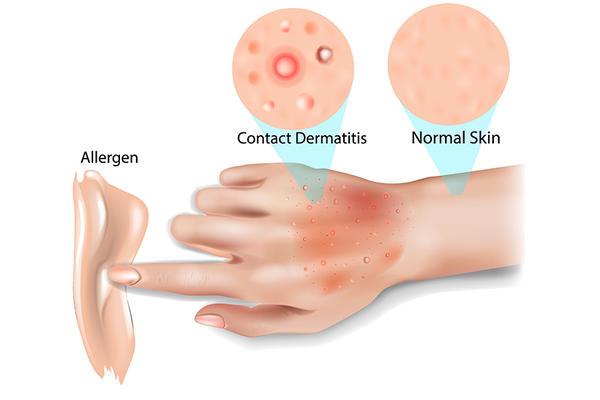 unguente pentru artroza articulației genunchiului 2 grade