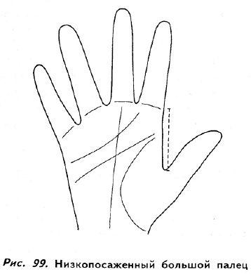 ce doare articulația degetului mare)
