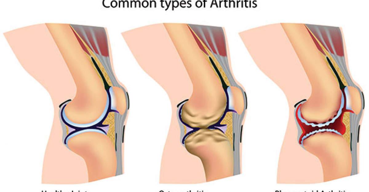 cauzele durerii și deformărilor articulare)