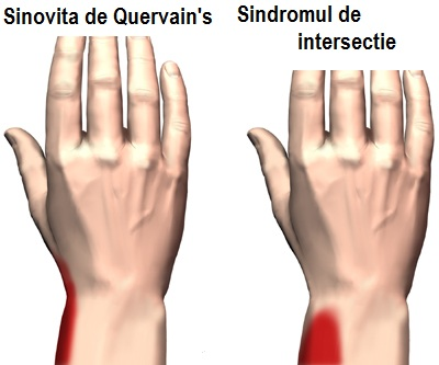 Styloidita articulației încheieturii mâinii
