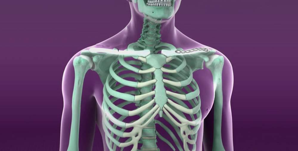 dureri de spate inferioare în articulațiile pieptului)