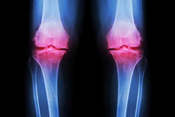 monoartroza tratamentului articulației genunchiului)