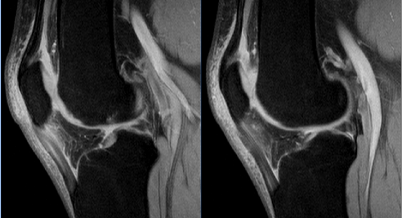 Tratamentul durerii patella. Electroforeză pentru dureri articulare
