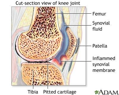 sinovita leziuni la genunchi