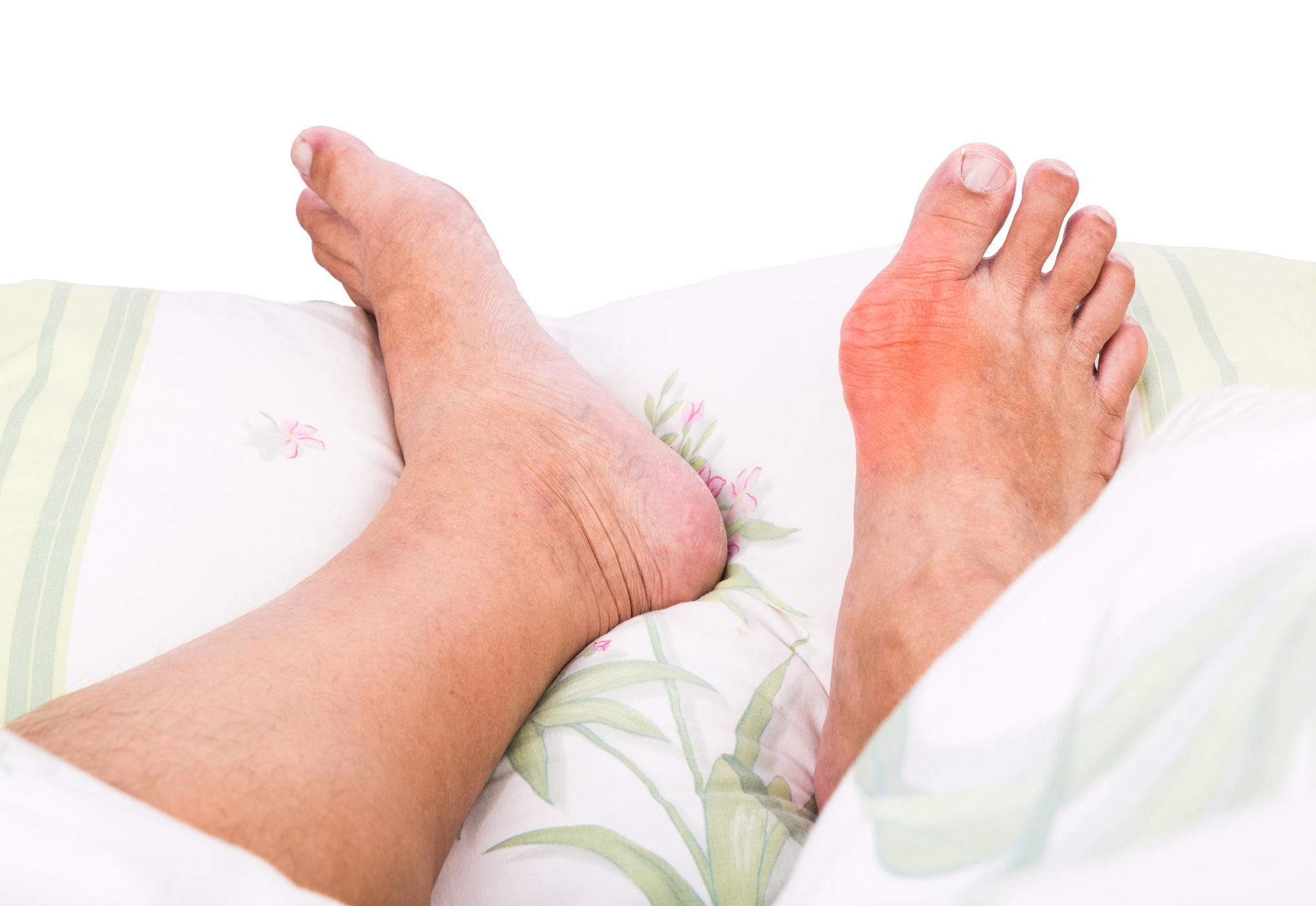 tratament naturist pentru guta la picioare)