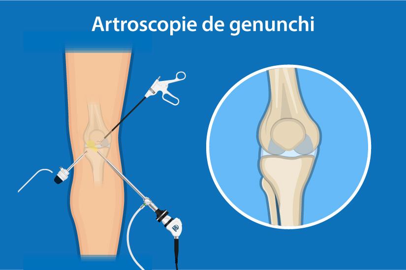 laparoscopia genunchiului în artroză