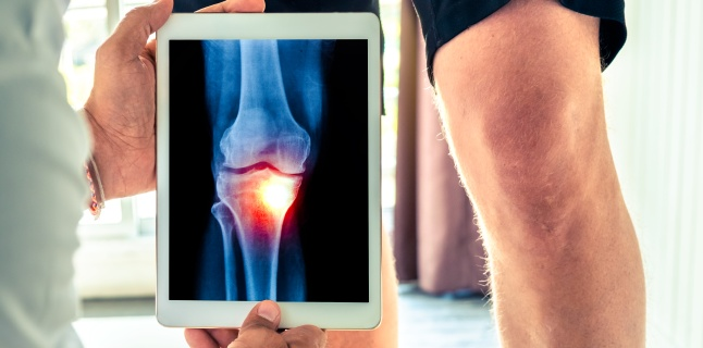 osteoartrita medicației articulației genunchiului osteochondroza dureri articulare