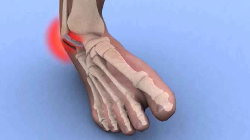 recuperare după entorsa genunchiului fie că sunt comandate cu artroza articulațiilor