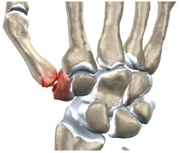 dureri articulare degetul mare și umflături