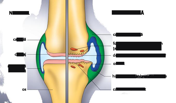 tratamentul rigidității genunchiului