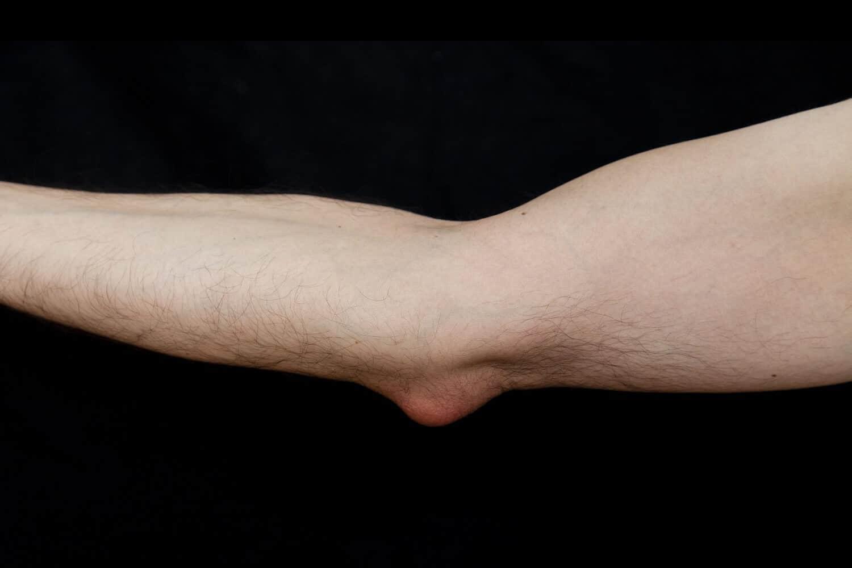 tratamentul unguent al inflamației genunchiului