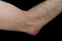 artrita cotului este)