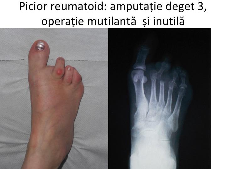 artrita articulațiilor degetelor și degetelor de la picioare