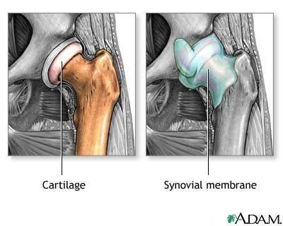 Artroza consecințelor șoldului