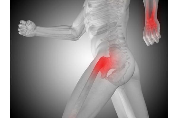 artroza a 2-a etapă a articulației șoldului)