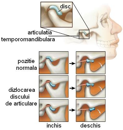 tratamentul artrozei articulației temporale