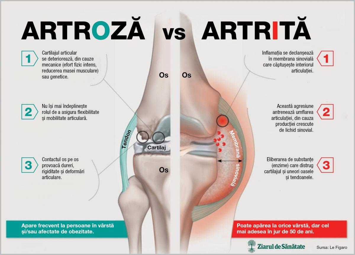 artrita și tratamentul bolii artrozei
