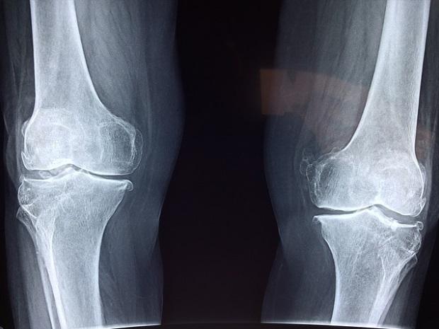 Cum sa tratezi artrita severa a genunchiului