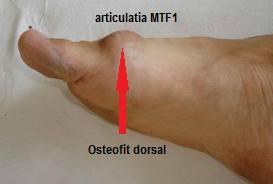 artroza piciorului metatarsian