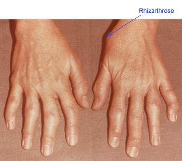 ce tratează artrita degetelor