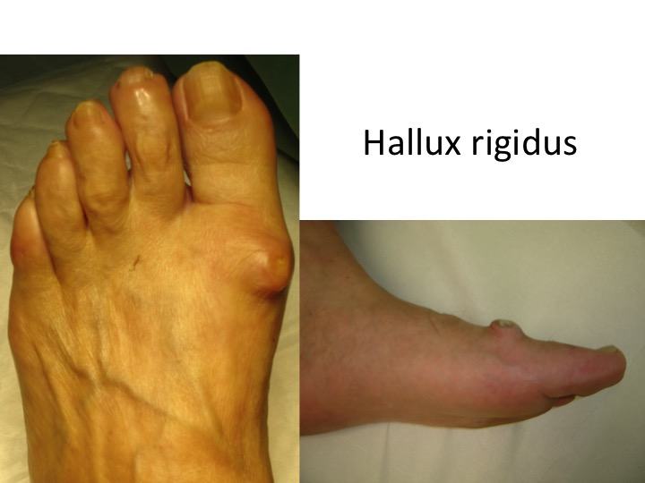 artroza tratamentului articulațiilor gleznei și gimnastică)