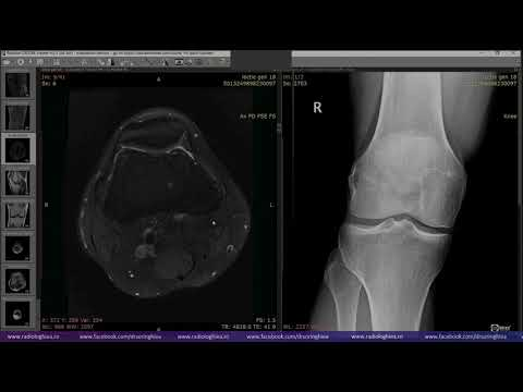 istoric medical falsă articulație a tibiei