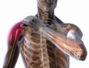 refacerea articulației umărului cu periartrita umăr-umăr