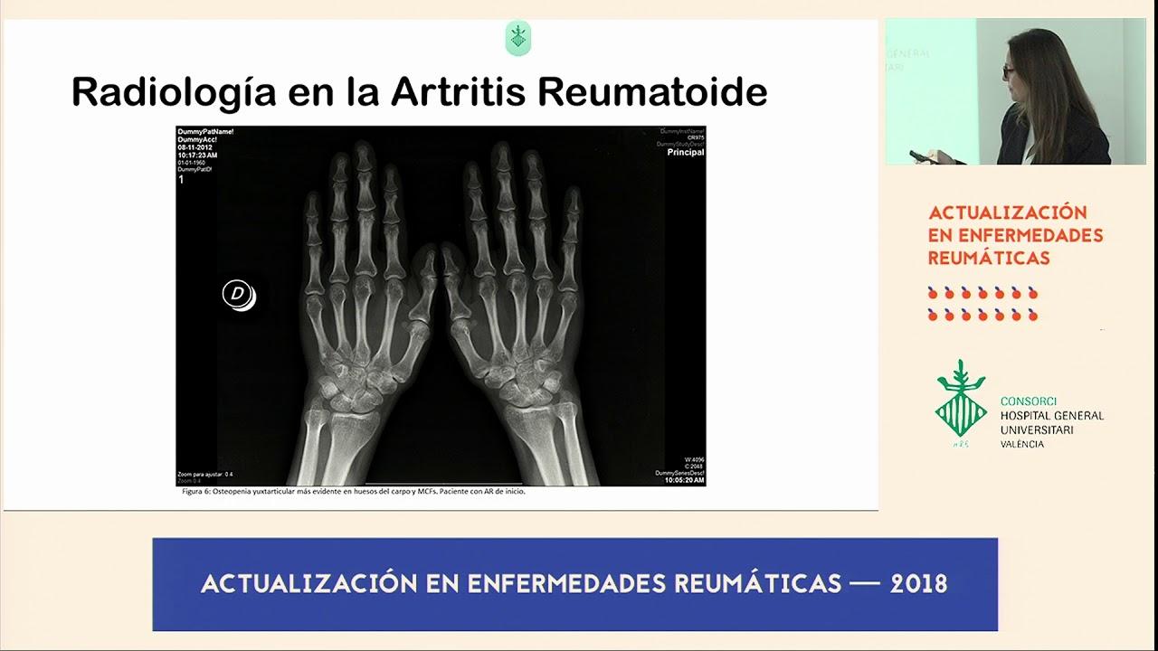 cum se tratează osteopenia tb articulația