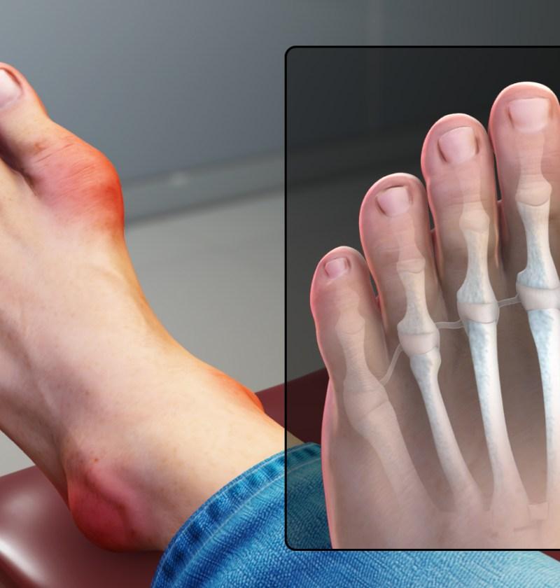 tratament naturist pentru guta la picioare
