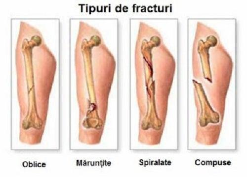 refacerea mobilității articulare după răni artroza genunchiului este tratabilă sau nu