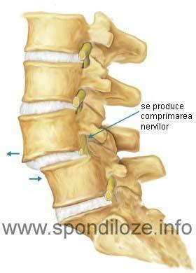 tratament articular vertebral