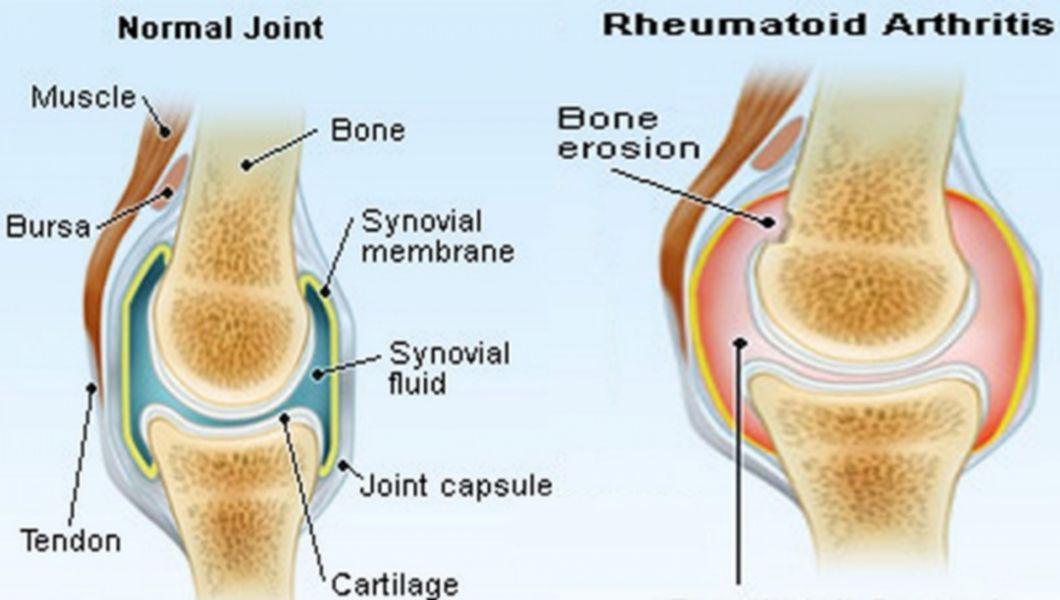 artritele articulare semnează un tratament