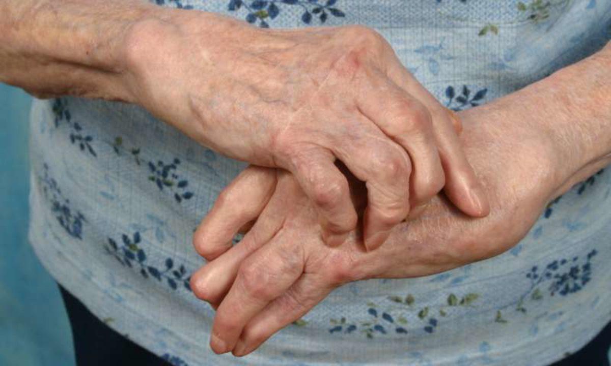 artrita si artroza ce trebuie tratat)