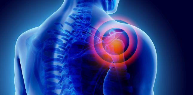 durere oncologică în articulațiile umărului)