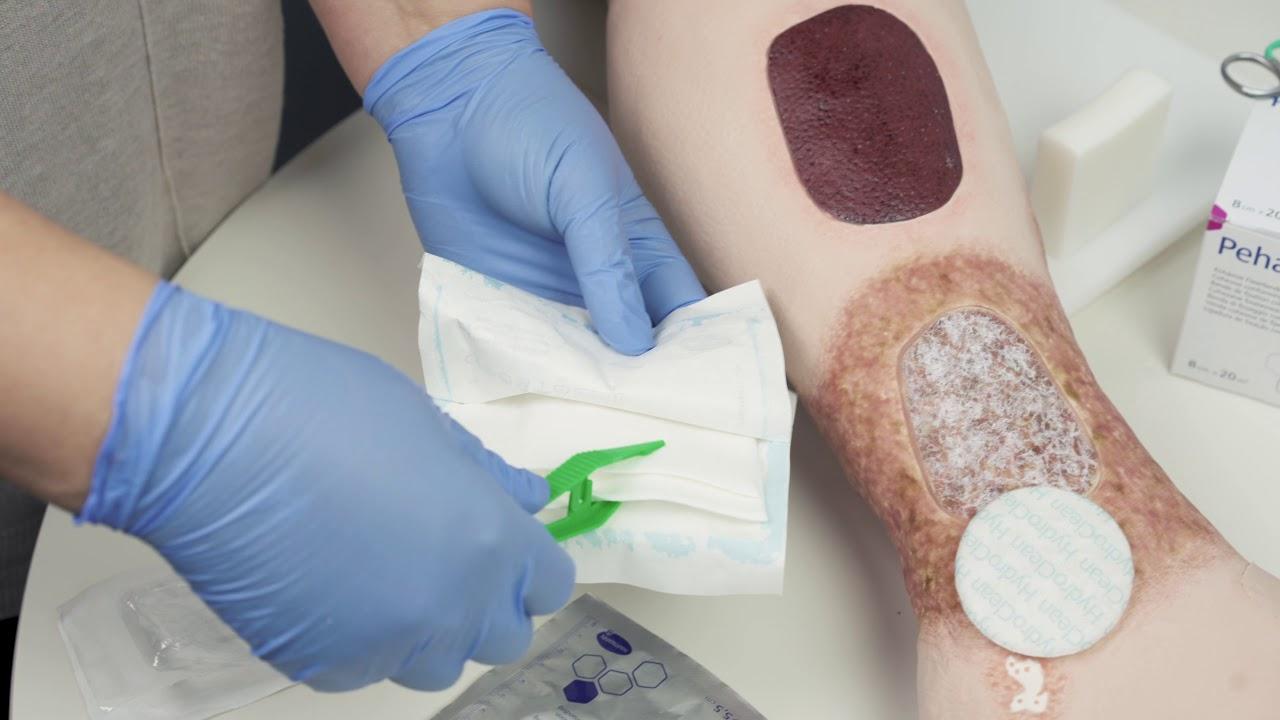 tratamentul ulcerelor trofice cu artroză)