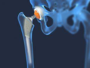 Dislocare la șold, entorsă a mușchilor, ligamente și displazie de TBS - Artroza