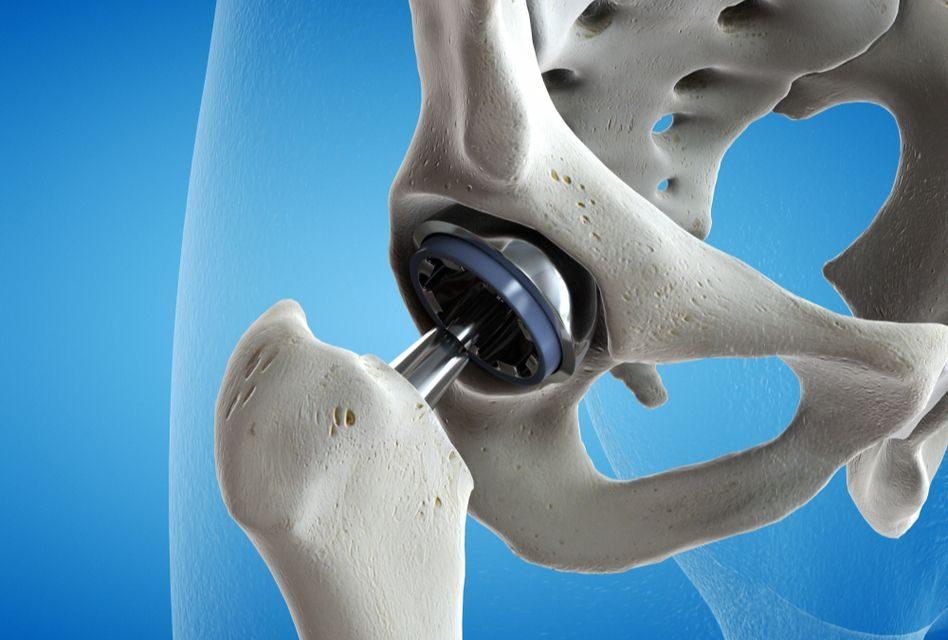 artroplastia genunchiului de șold
