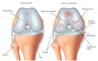 inflamația periostului simptomelor genunchiului