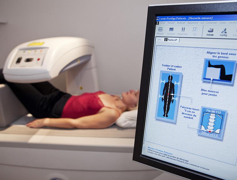 tratamentul osteoporozei la șold)