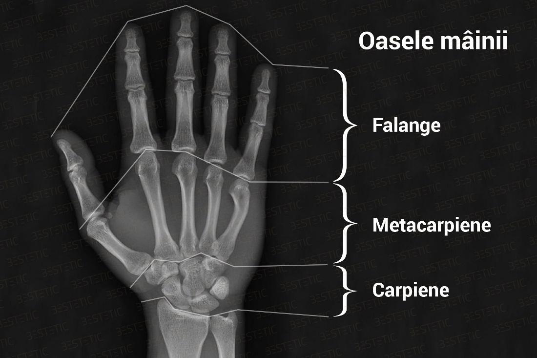 care vindecă oasele și articulațiile