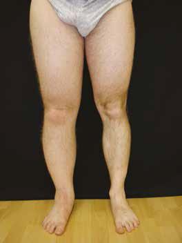 edem sub genunchi pulbere de artroză pentru tratamentul articulațiilor
