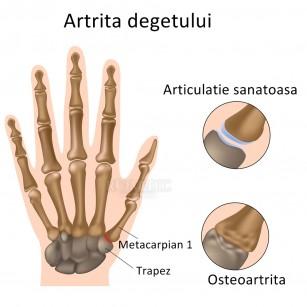 simptomele inflamației articulațiilor mâinii care tratează artroza gleznei
